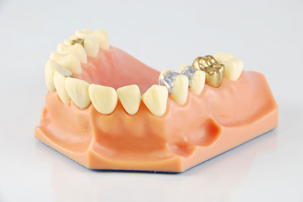 Cyprus dental inlay onlay